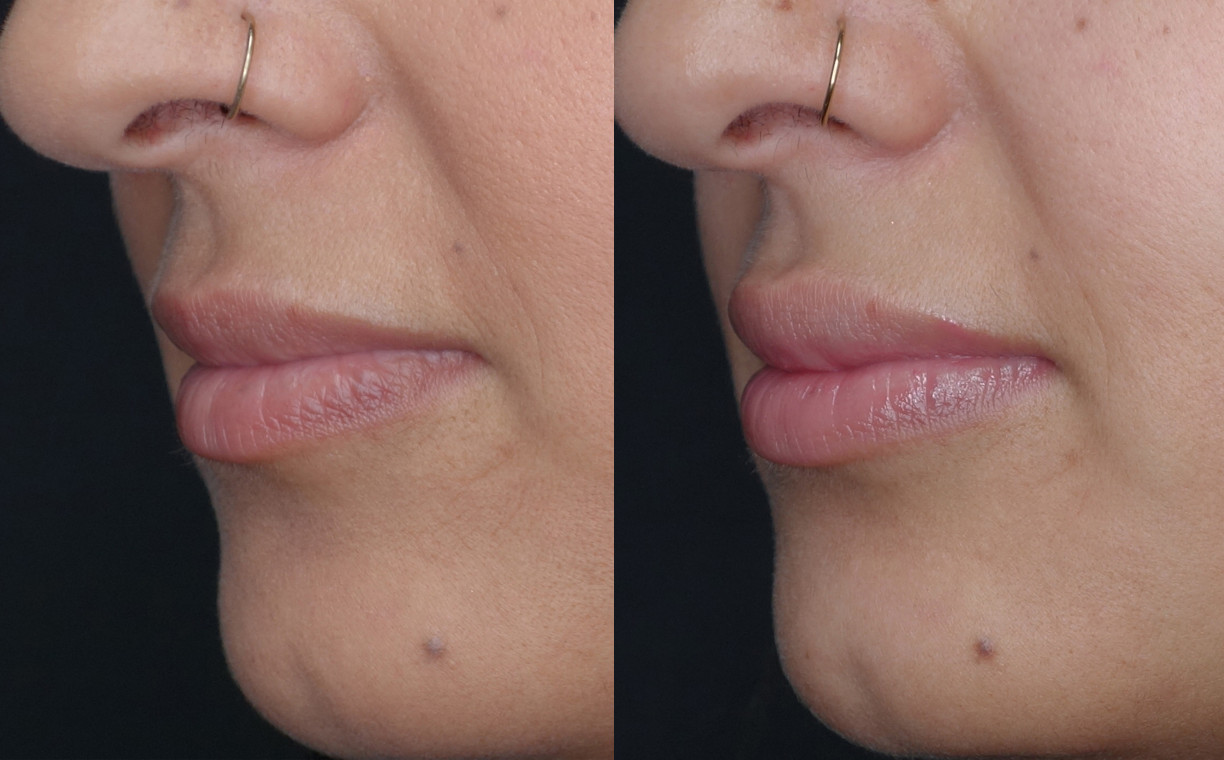 Bobbie Lips Before and After