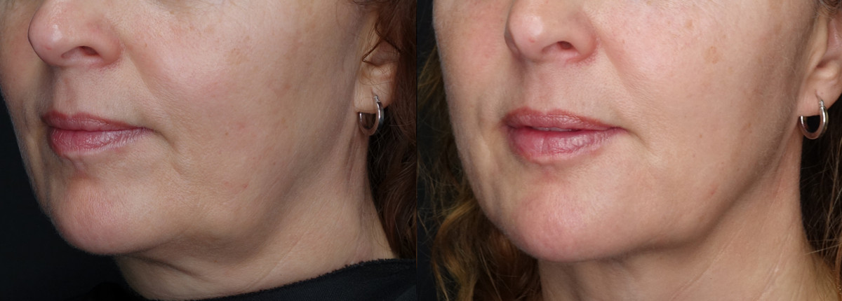 Chin Jawline Before and After