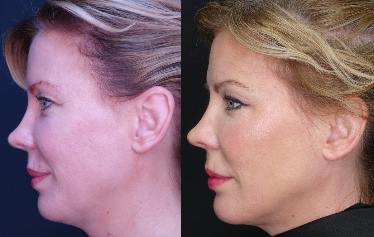 Zoe Chin Jawline Before and After
