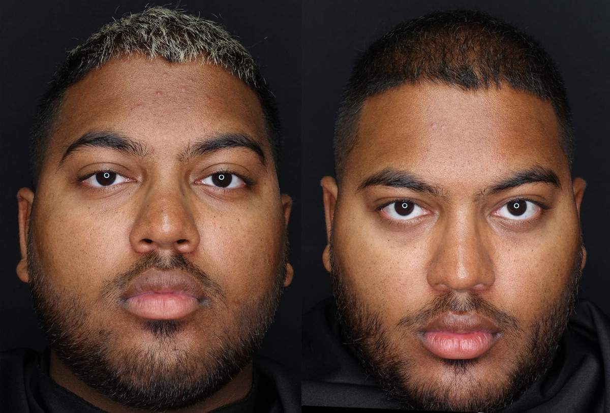 Defined Facial Appearance Before and After