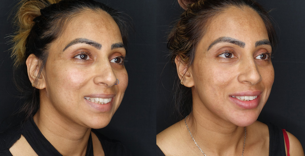 Full Face Before and After