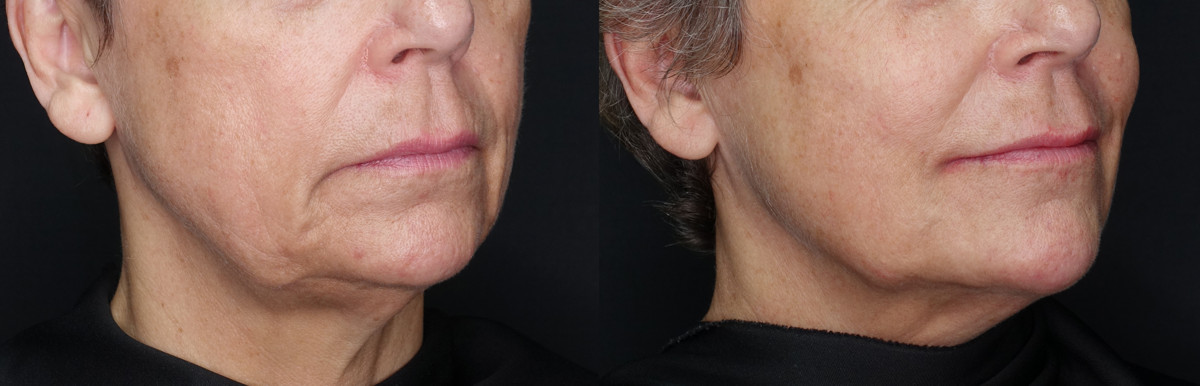 Jaw Line Tightening Before and After