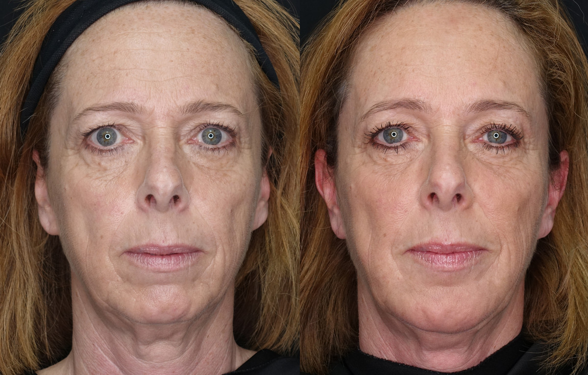 Jowls and Double Chin Before and After
