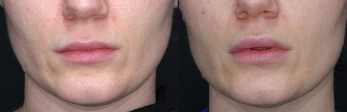 Lip Enhancement Before and After