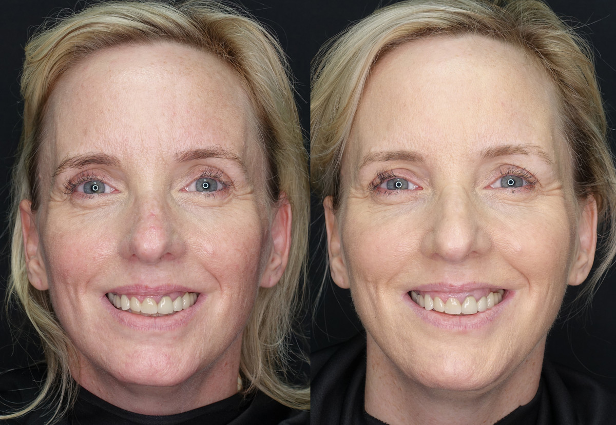 Wrinkles Facial Volume Loss Before and After